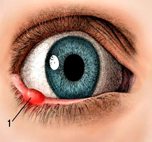 Home remedies for eye infection in humans videos