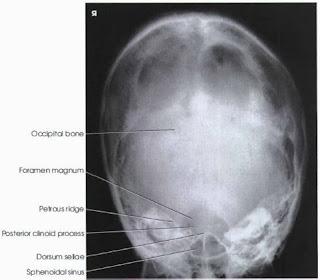 haas method pa skull