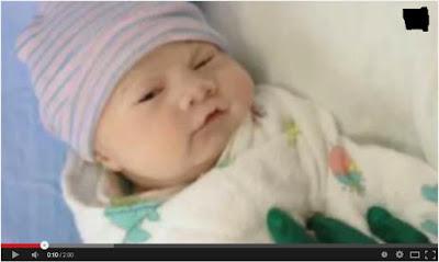 Bayi ini Terlahir Pucat Tanpa Darah Sedikitpun