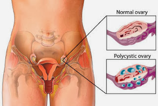 Polycystic Ovarian Syndrome Treatment In Hours, Not Days