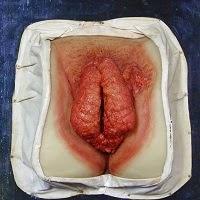 Obat Condyloma Accuminta Di Vagina