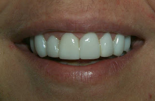 lumineers teeth