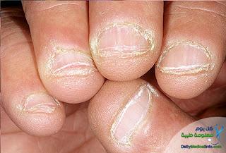بالصور اظافرك عنوان صحتك Nails+(8)