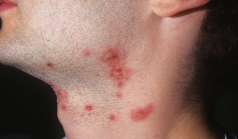 What Exactaly Is Shingles? And How Can You Get It? Is It Anything Related To Sexual Activity? 3
