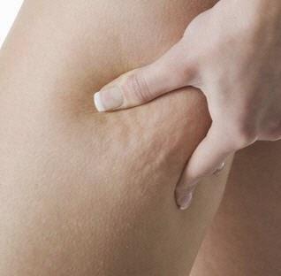get Eliminate Cellulite