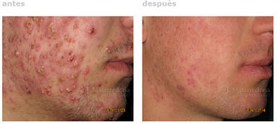 Isotrex for acne