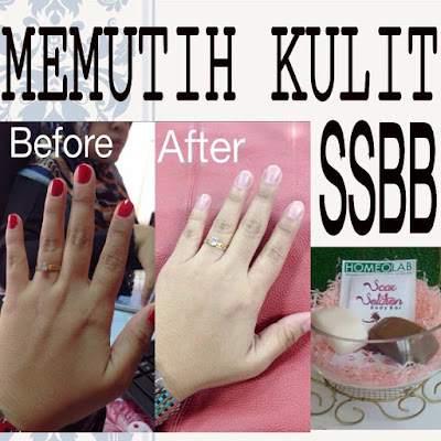 Testimoni Scar Solution Body Bar (SSBB)