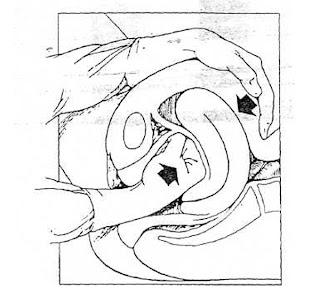 cara penanganan atoia uteri kompresi bimanual eksterna (KBE)