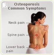 rawatan osteoporosis