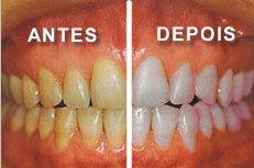 Tag Como Clarear Os Dentes Com Bicarbonato
