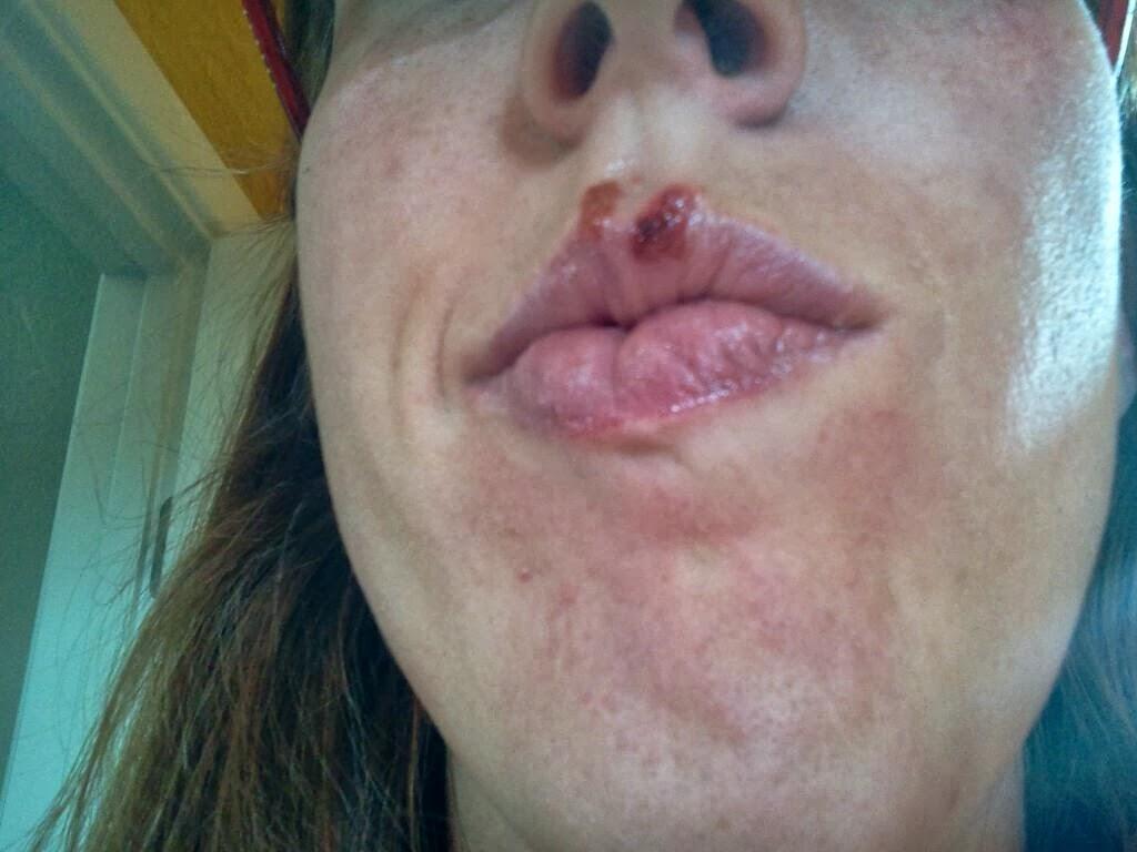 Mites that cause facial sores