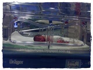 Raul en la incubadora
