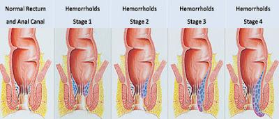 Bệnh trĩ ngoại và cách điều trị hiệu quả