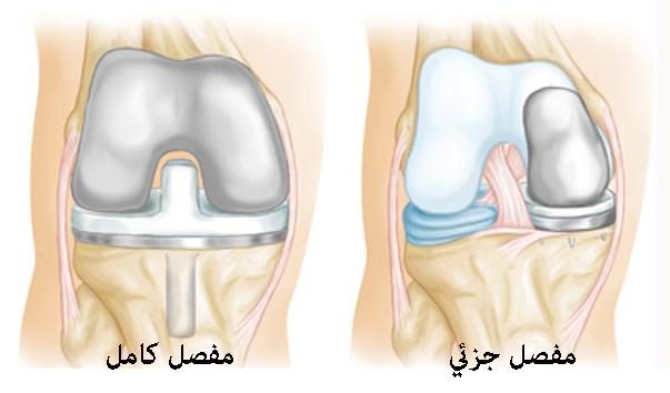 أمراض العظام استبدال وزراعة المفاصل