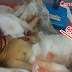 10-Day-Old Newborn Baby Dies After Being Bitten By Rats In A Hospital