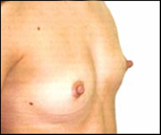 Aumento de senos cereza arroyo denver