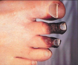 skin disorders in diabetes Mellitus