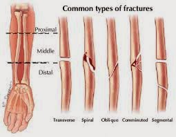 Risks And Health Issues Fractures