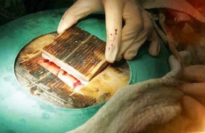 Caesarean section for a turtle (6 pics), Vets perform Caesarean section on turtle to save her life