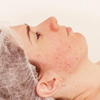 Getting Rid of Acne Scars