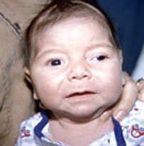 Criança com Sindrome de Turner