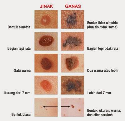 Obat Tumor Alami Herbal
