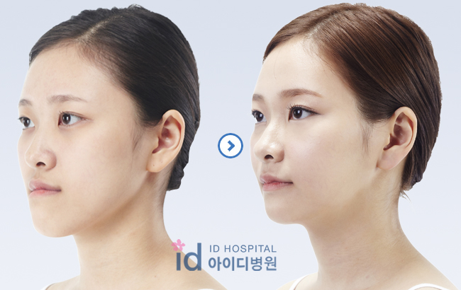 ID Hospital Korea Plastic Surgery: [two jaw surgery in korea ...