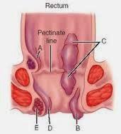 Bagaimana Menyiapkan Rectoscopy
