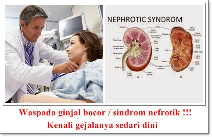 http://alternatifpengobatanalami.blogspot.co.id/2015/11/pengobatan-alami-ginjal-bocor.html