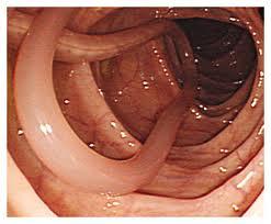 глисты у человека симптомы лечение таблетки фото