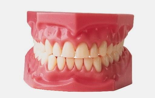 Cara Membuat Gigi Tetap Putih Dan Bersih Secara Alami Michael404dotcom