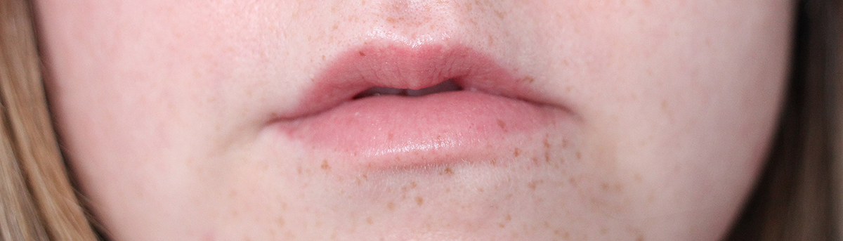 lips-before-fillers