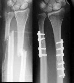 Sehat Ideal Obat Patah Tulang