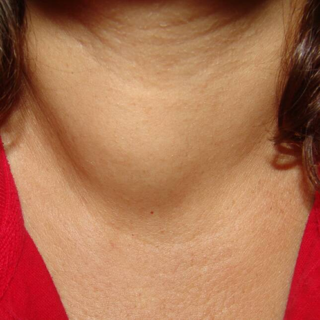 ... the thyroid. The problem I am going to focus on are thyroid cysts