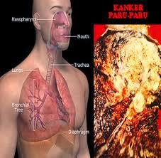 Cara Tuntas Menyembuhkan Penyakit Kanker Paru-Paru