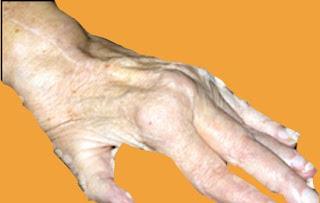 Rheumatoid Arthritis (RA) Causes and Symptoms