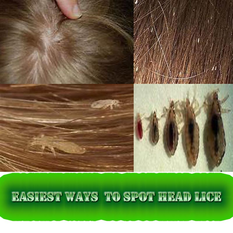 Easiest Ways Reduce And Remove Head Lice
