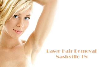Laser Hair Removal Nashville TN