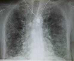 Asbestosis Symptoms