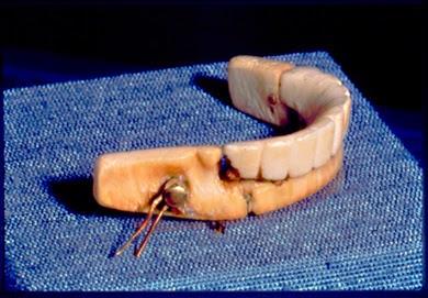 Una de las varias dentaduras postizas que utilizó Georges Washington