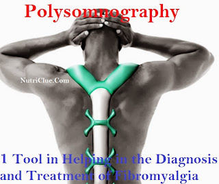 Polysomnography: One Tool in Helping in the Diagnosis and Treatment of Fibromyalgia