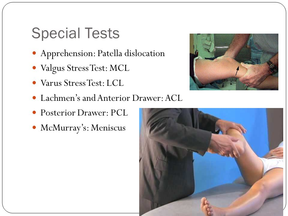 Struggling HO: Knee Pain Special Test