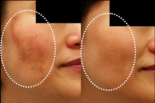 Many modern day melasma specialty cosmetics contain some or all of the ...