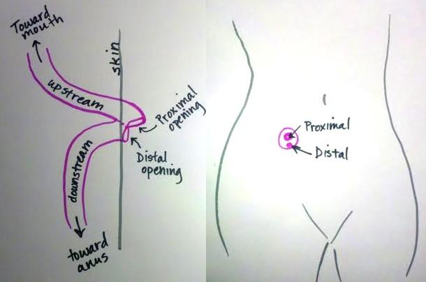Loop Ileostomy