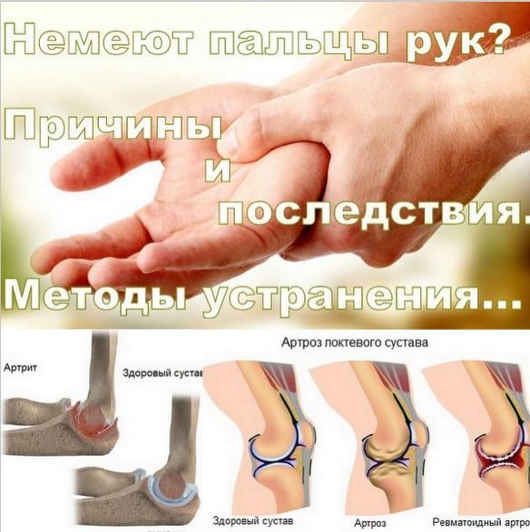 rheumatoid arthritis, joint pain