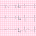 Atypical Chest Pain: Suspicious ECG, and a Left Main ACS is found in a 30-something