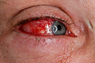 Collapse Eye Care, Part 1 – 12/19/11