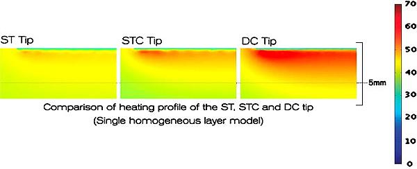 趙彥宇醫師發現利用正確方式塑顏電波Thermage DC可以消除臉上肥油