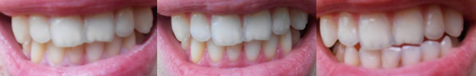 Dzisiaj chciałabym Wam opowiedzieć o paskach wybielających zęby, które zastosowałam kilka dni temu. Crest to ta sama firma co Blend-a-med, tylko taką nazwę ma w USA i w Niemczech. Ja kupiłam 14 sztuk pasków (po 7 na górę i na dół) na allegro za około 40 zł. Jest to kuracja 7-dniowa.      jak stosuje się paski? - Najlepiej bezpośrednio przed założeniem pasków nie szczotkować ich, to zmniejsza znacząco ryzyko uwrażliwienia zębów. - Dobrze jest w czasie wybielania używać miękkiej szczotki do zębów i pasty przeznaczonej do wrażliwych zębów (ze swojej strony polecam pastę elmex SENSITIVE PLUS i meridol). - Ograniczyć szczotkowania zębów do minimum - dwa razy dziennie. - Zęby powinny być suche przed użyciem pasków. - Należy umyć ręce po nałożeniu pasków, by nie uległy one wybieleniu. - Paski zakładamy dwa razy dziennie po 30 minut.     Myślę, że również dobrze jest w czasie wybielania zrezygnować z posiłków, napojów, które zwykle powodują, że zęby żółkną: kawa, mocna herbata, soki marchewkowe, sosy pomidorowe itp.  Przed wybielaniem trzeba pozbyć się wszelkiego kamienia z zębów, bo w miejscach w którym on występują zęby się nie wybielą!  Minusy  Niestety ten produkt ma jeden bardzo istotny minus - uwrażliwia zęby, dlatego sporo osób szybko z niego rezygnuje. U mnie ból nie był jakiś bardzo duży i zniknął po około dwóch dniach. Myślę, że trzymając się zasad, które wymieniłam powyżej można to ryzyko bardzo zminimalizować.  Efekty  Przed kuracją nie miałam bardzo żółtych zębów, ale chciałam mieć śnieżno-białe. Szczerze to na początku stosowania tych pasków nie widziałam żadnych efektów. Stosowałam, bo skoro wydałam już troszkę pieniążków na nie, to szkoda było mi zrezygnować. Myślę, że po zdjęciach widać jakąś tam różnice, dla mnie najbardziej pomogło wybielenie pewnej czarnej plamki, która zniknęła całkowicie! Jak dla mnie wybielenie mogłoby być większe, ale jak za taką cenę za wybielanie to nie jest źle. Nie piję jednak kawy ani mocnej herbaty, nie palę i używam past wybie