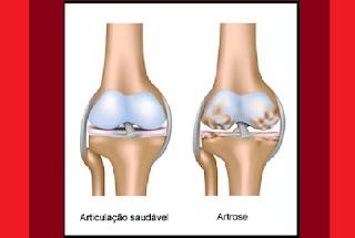 A artrose (osteoartrite) é caracterizada por uma degeneração da cartilagem articular, o que causa dor e inchaço.